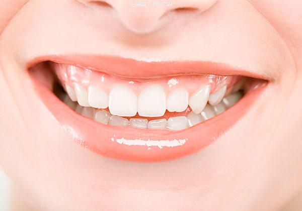 Пародонтит, або врятуйте Ваші зуби